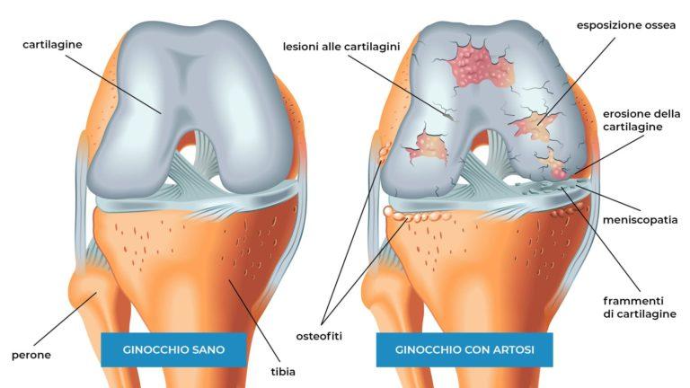 artrosi del ginocchio fisioterapia