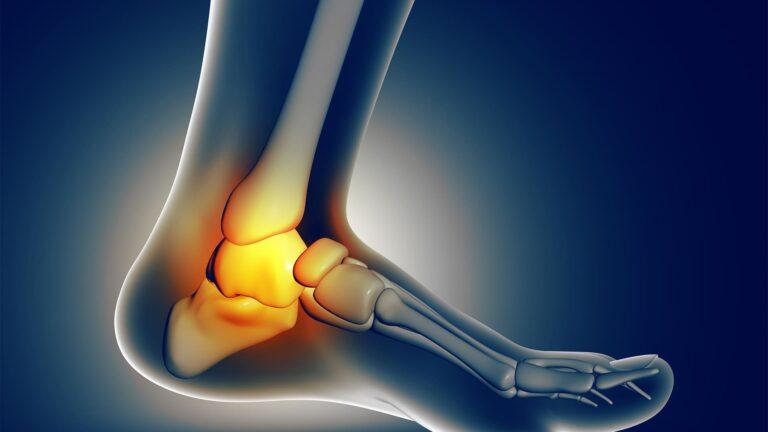 Come curare distorsione caviglia